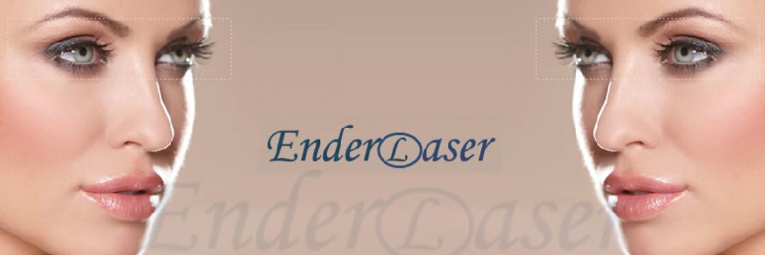 Ender Laser